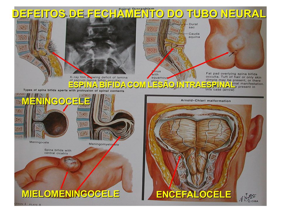 DEFEITOS DE FECHAMENTO DO TUBO NEURAL