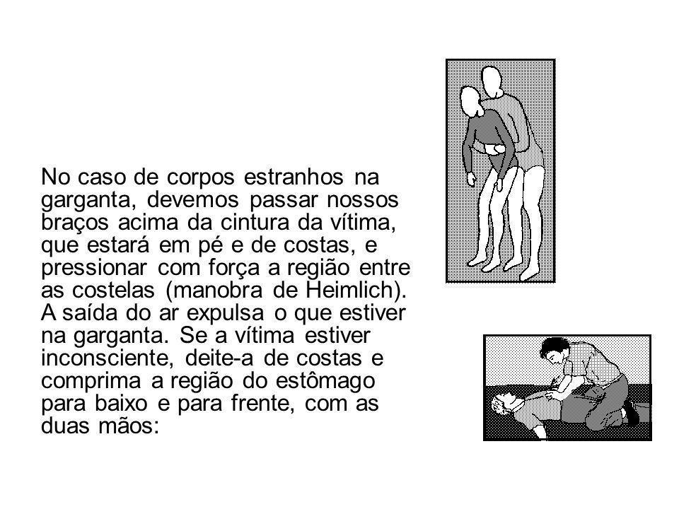 No caso de corpos estranhos na garganta, devemos passar nossos braços acima da cintura da vítima, que estará em pé e de costas, e pressionar com força a região entre as costelas (manobra de Heimlich).