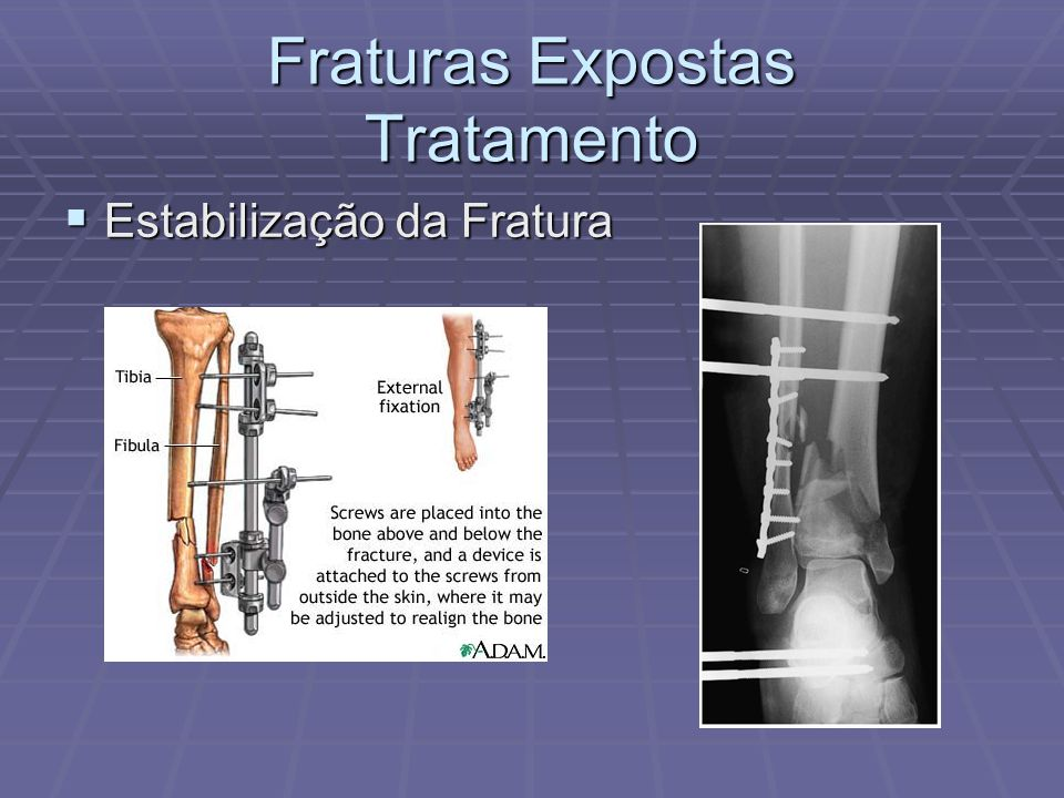 Fraturas Expostas Tratamento