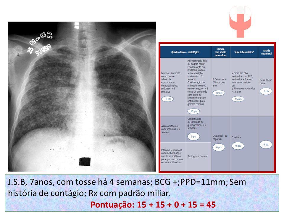 J.S.B, 7anos, com tosse há 4 semanas; BCG +;PPD=11mm; Sem história de contágio; Rx com padrão miliar.