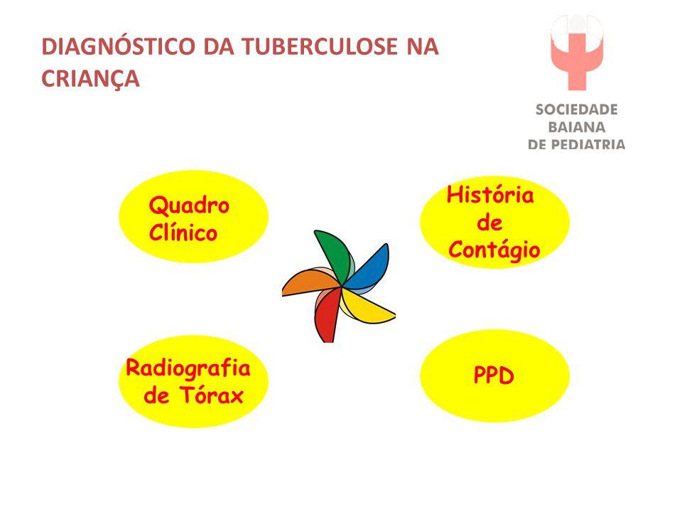 DIAGNÓSTICO DA TUBERCULOSE NA CRIANÇA