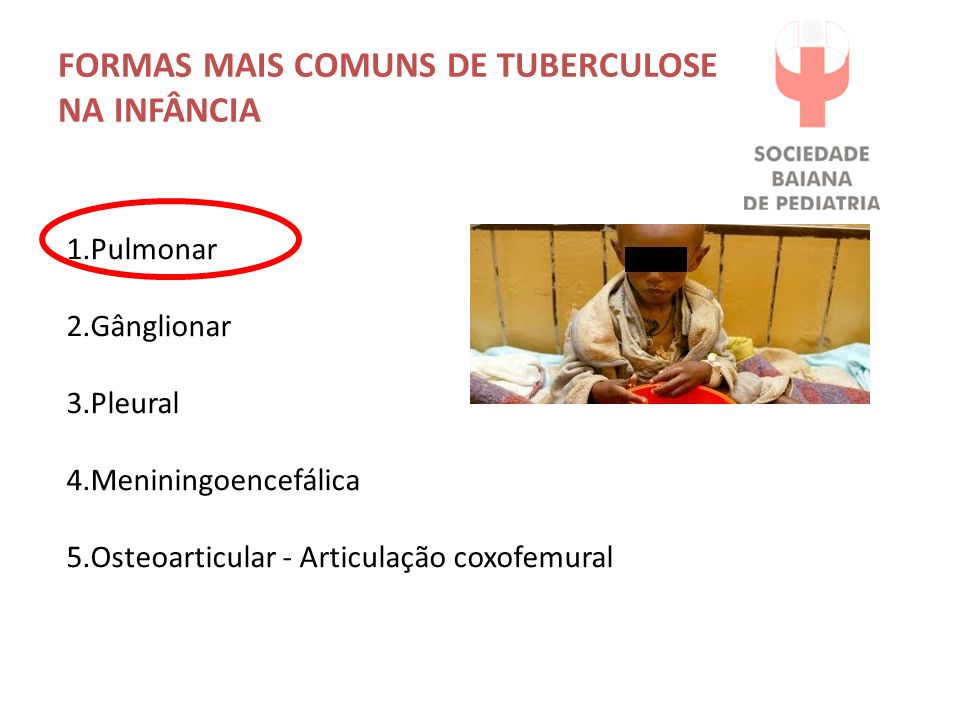 FORMAS MAIS COMUNS DE TUBERCULOSE NA INFÂNCIA