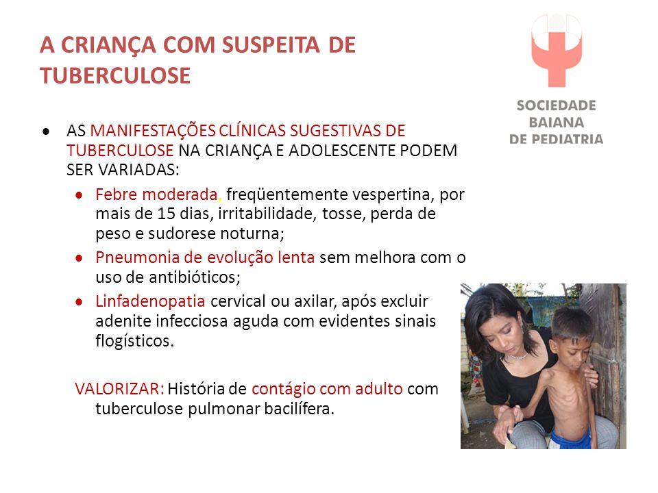 A CRIANÇA COM SUSPEITA DE TUBERCULOSE