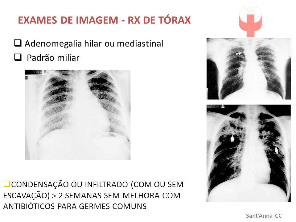 EXAMES DE IMAGEM - RX DE TÓRAX