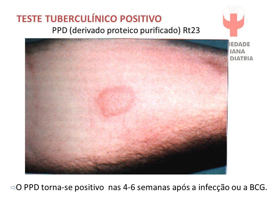 TESTE TUBERCULÍNICO POSITIVO