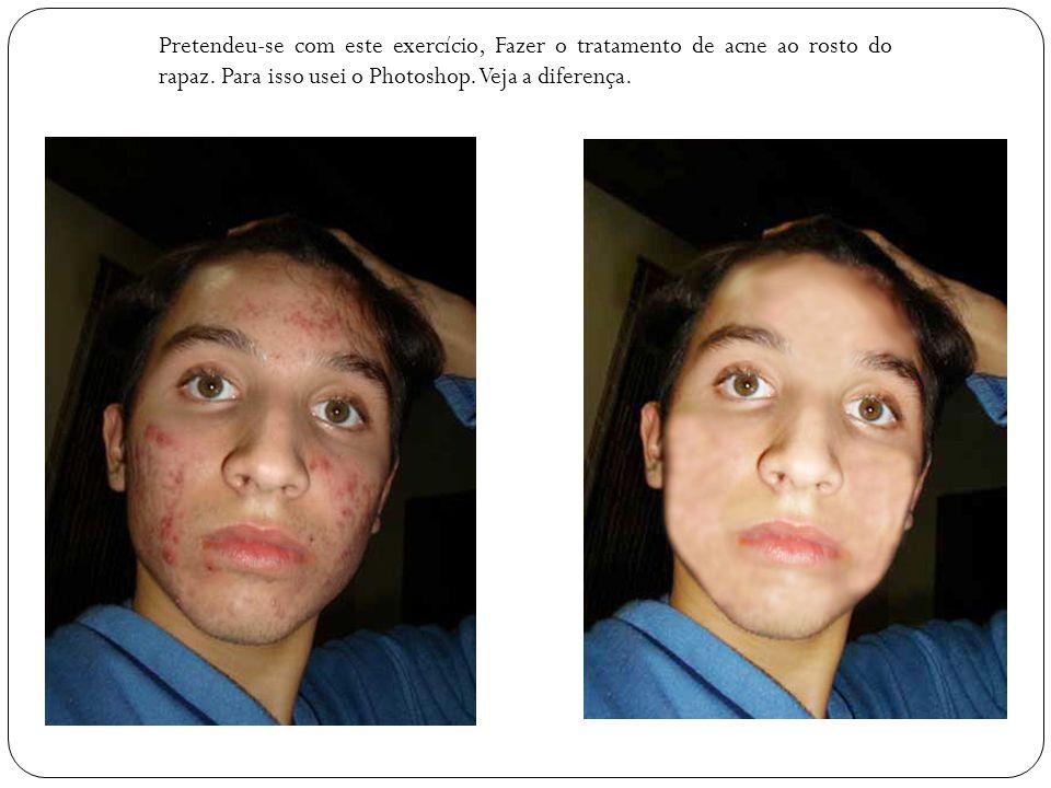 Pretendeu-se com este exercício, Fazer o tratamento de acne ao rosto do rapaz.