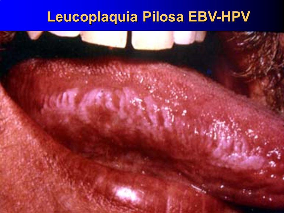Leucoplaquia Pilosa EBV-HPV