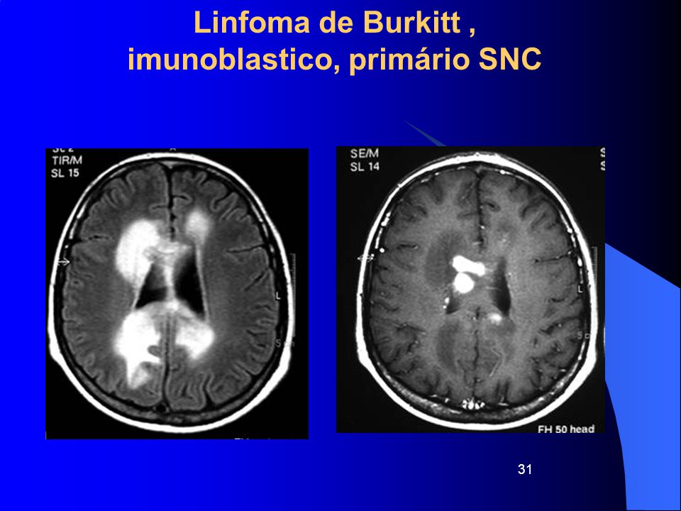 Linfoma de Burkitt , imunoblastico, primário SNC