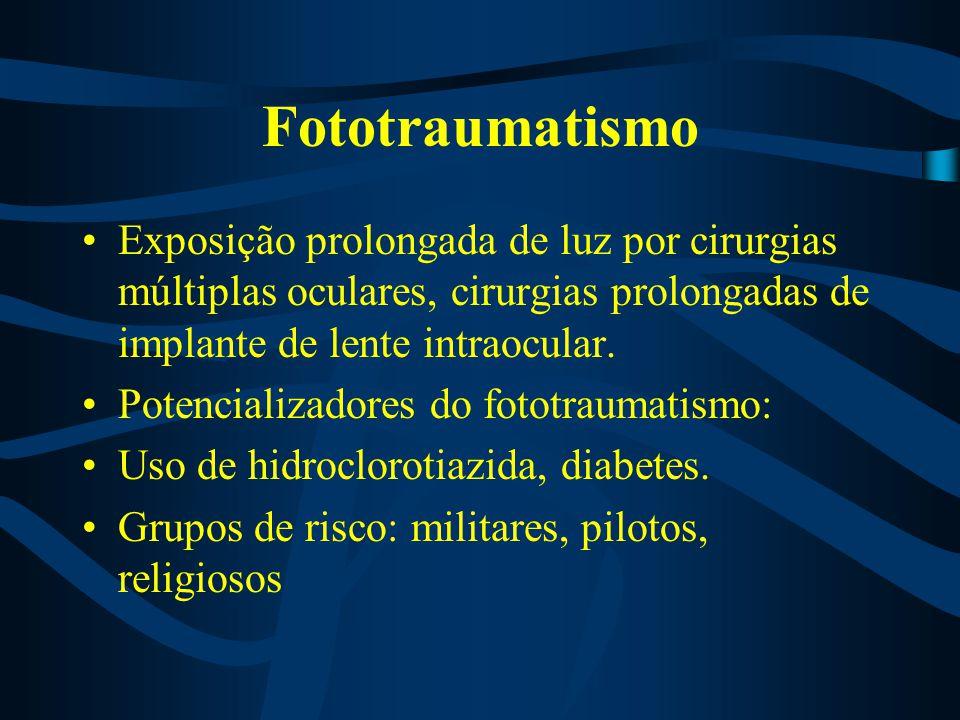 Fototraumatismo Exposição prolongada de luz por cirurgias múltiplas oculares, cirurgias prolongadas de implante de lente intraocular.