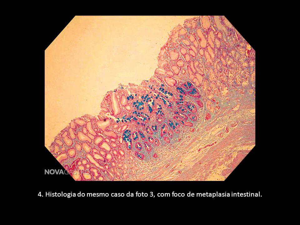 4. Histologia do mesmo caso da foto 3, com foco de metaplasia intestinal.