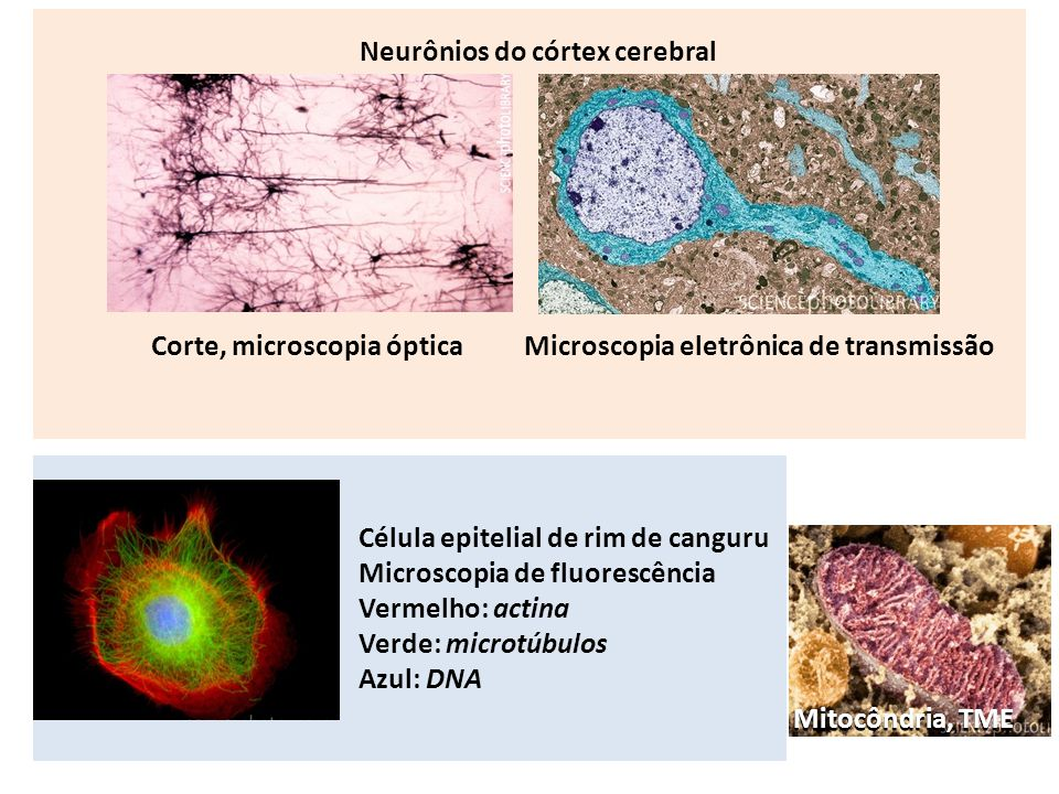 Neurônios do córtex cerebral