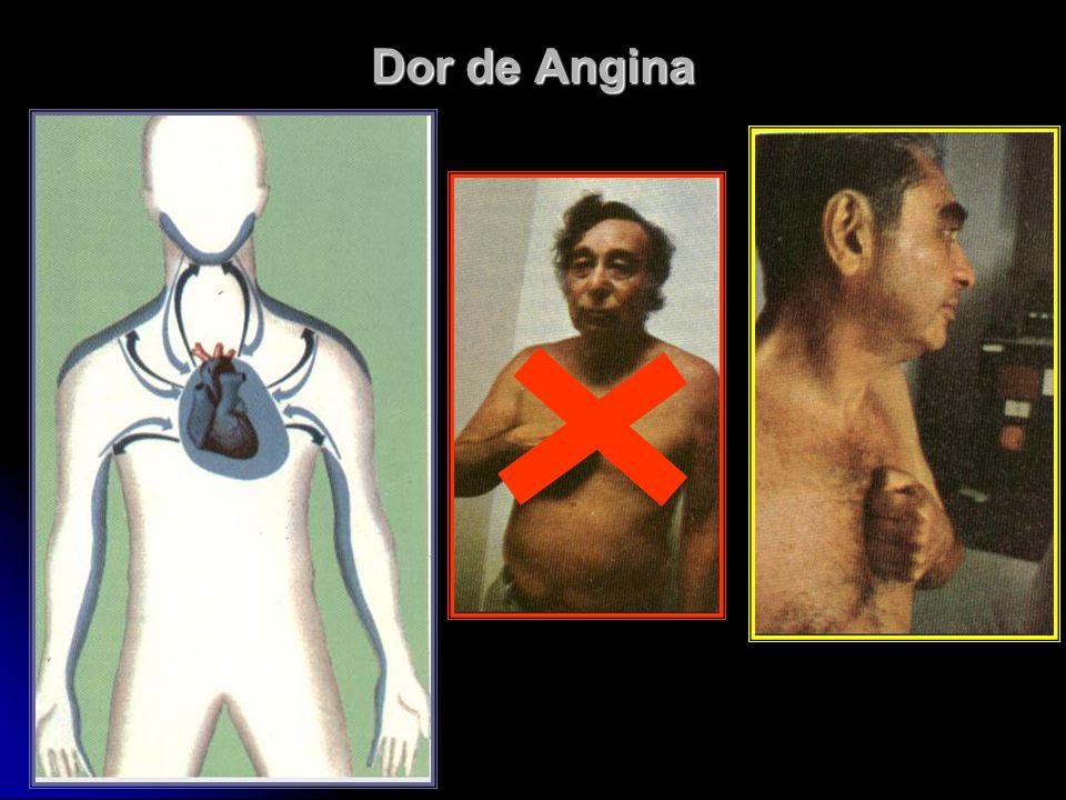 Dor de Angina