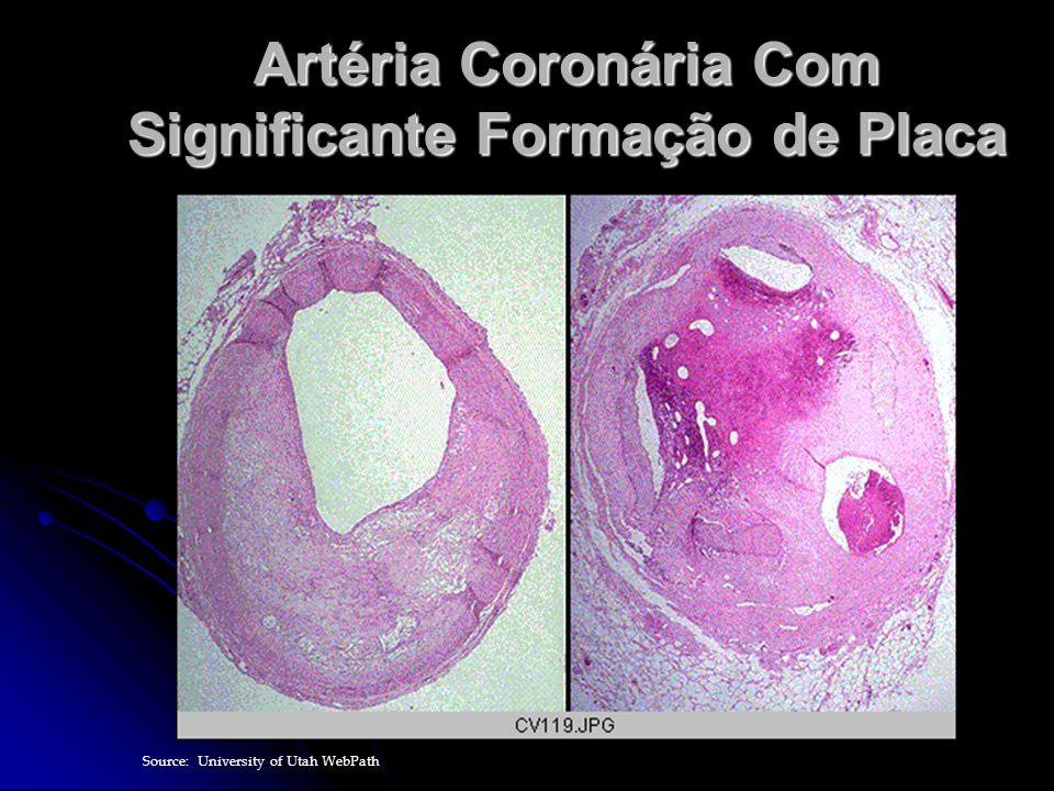 Artéria Coronária Com Significante Formação de Placa