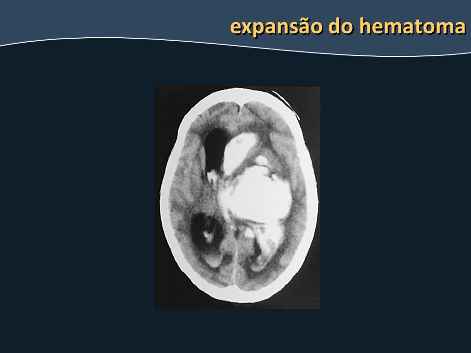expansão do hematoma