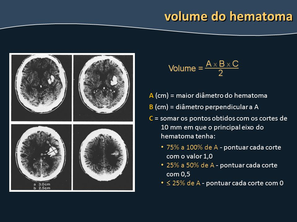 volume do hematoma A (cm) = maior diâmetro do hematoma