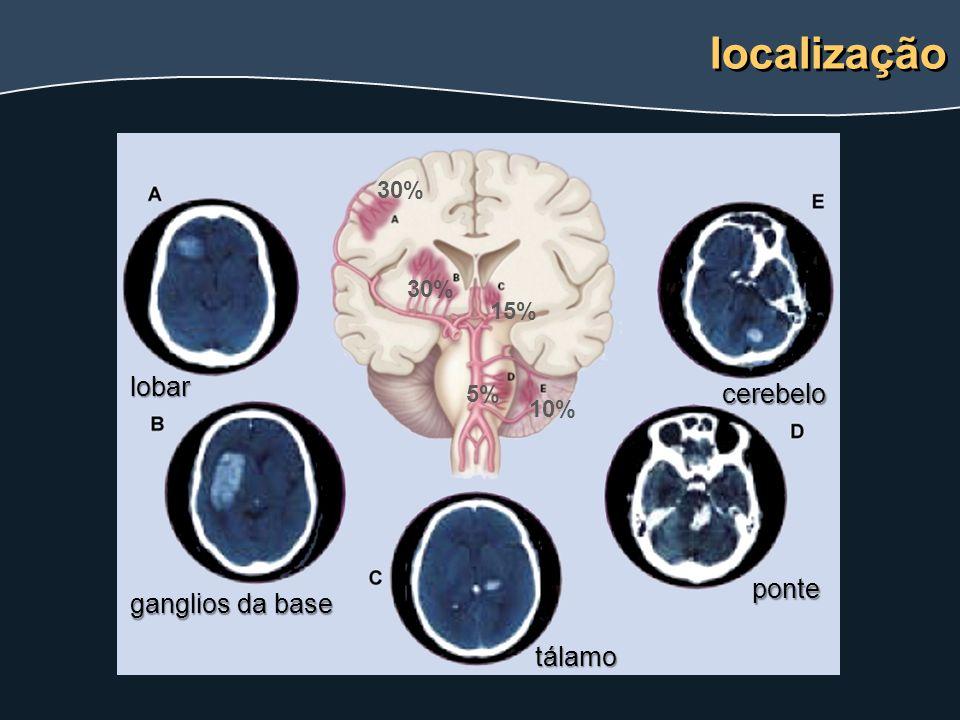 localização lobar cerebelo ponte ganglios da base tálamo 30% 30% 15%