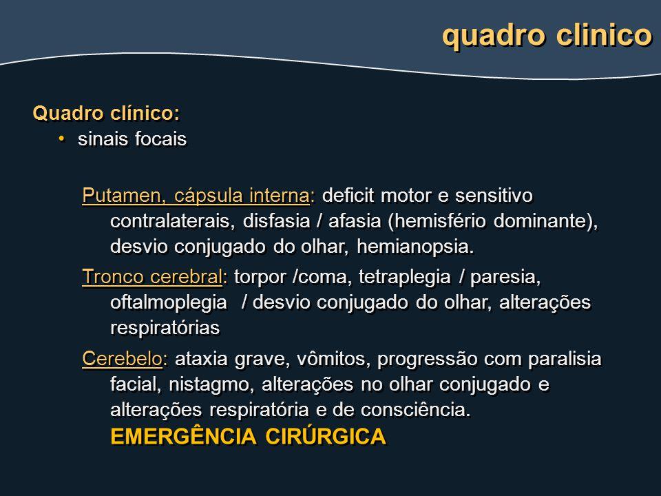 quadro clinico Quadro clínico: sinais focais