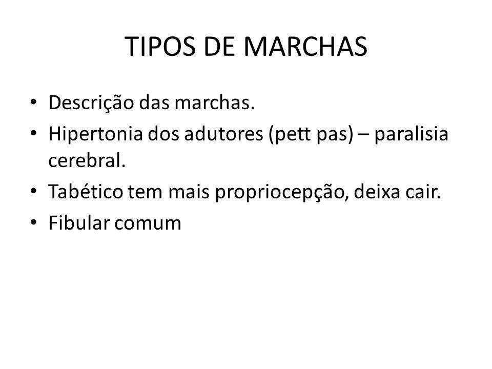 TIPOS DE MARCHAS Descrição das marchas.