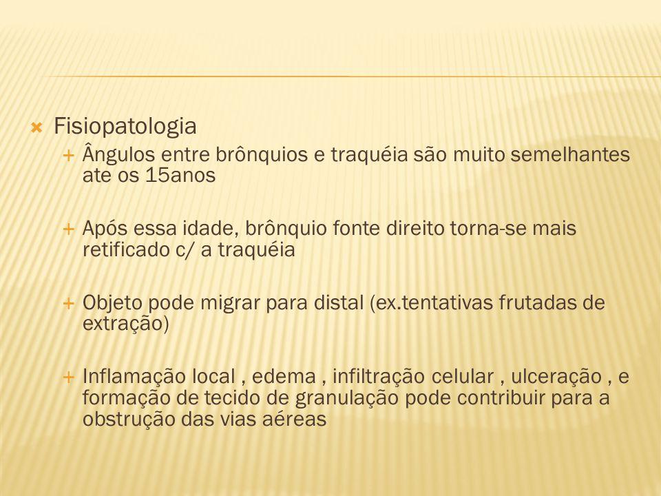 Fisiopatologia Ângulos entre brônquios e traquéia são muito semelhantes ate os 15anos.