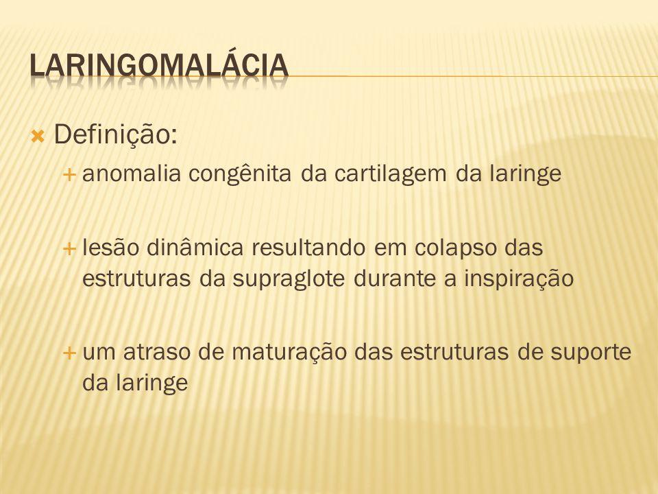 laringomalácia Definição: anomalia congênita da cartilagem da laringe