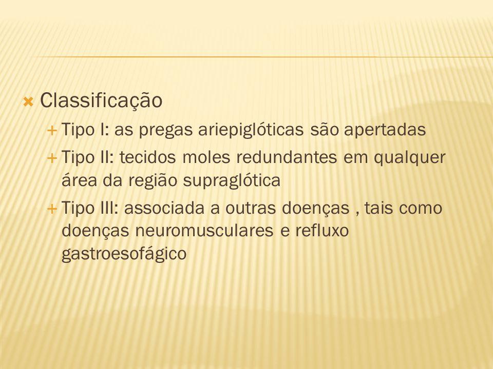 Classificação Tipo I: as pregas ariepiglóticas são apertadas