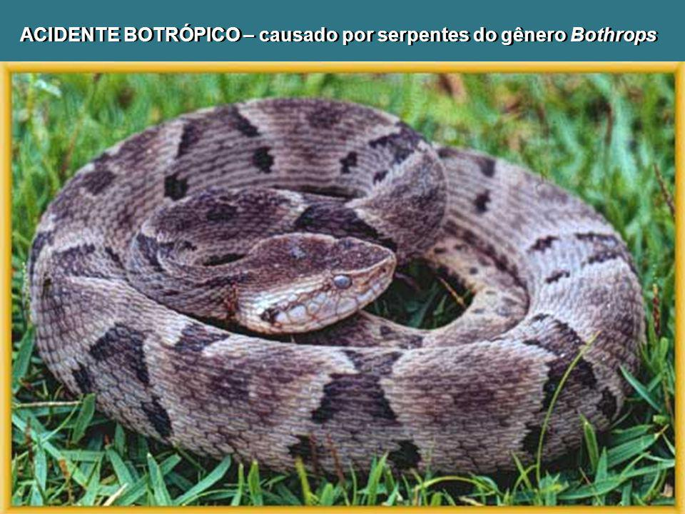 ACIDENTE BOTRÓPICO – causado por serpentes do gênero Bothrops