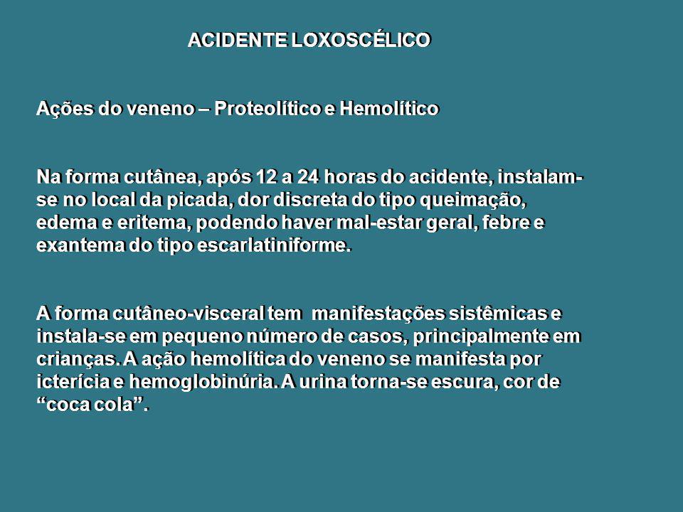 ACIDENTE LOXOSCÉLICO Ações do veneno – Proteolítico e Hemolítico.