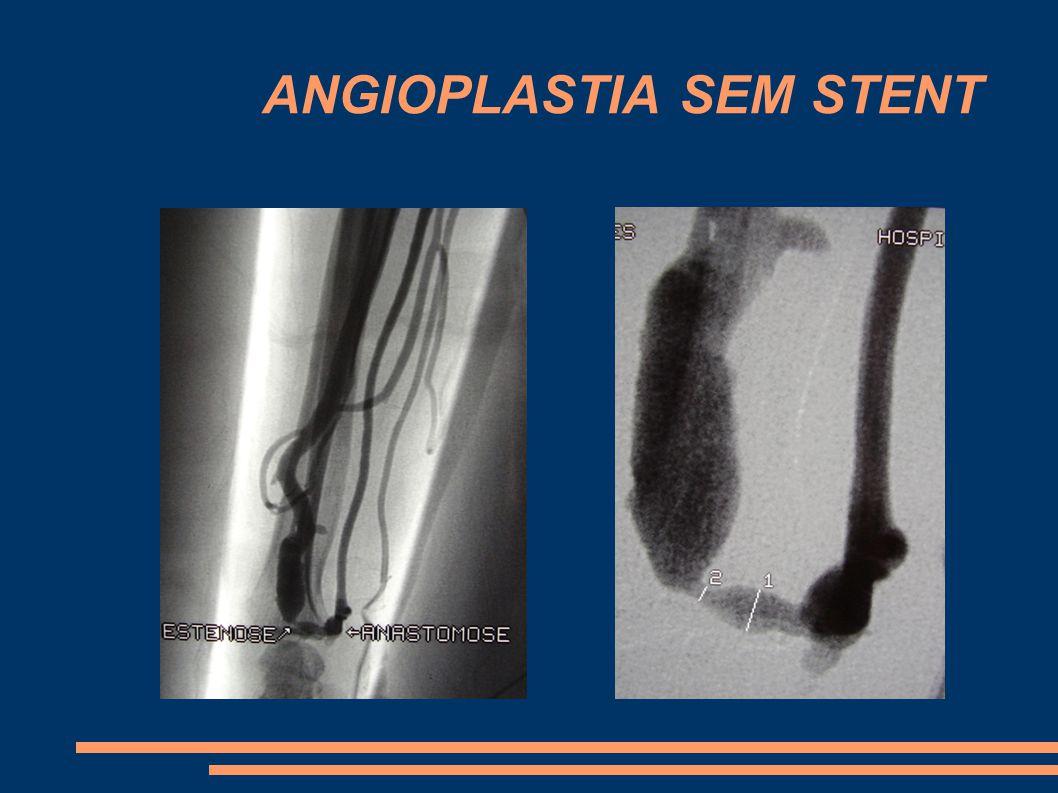 RESULTADOS Somente Angioplastias