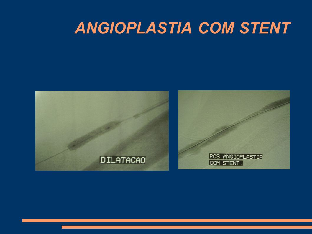 ANGIOPLASTIA COM STENT