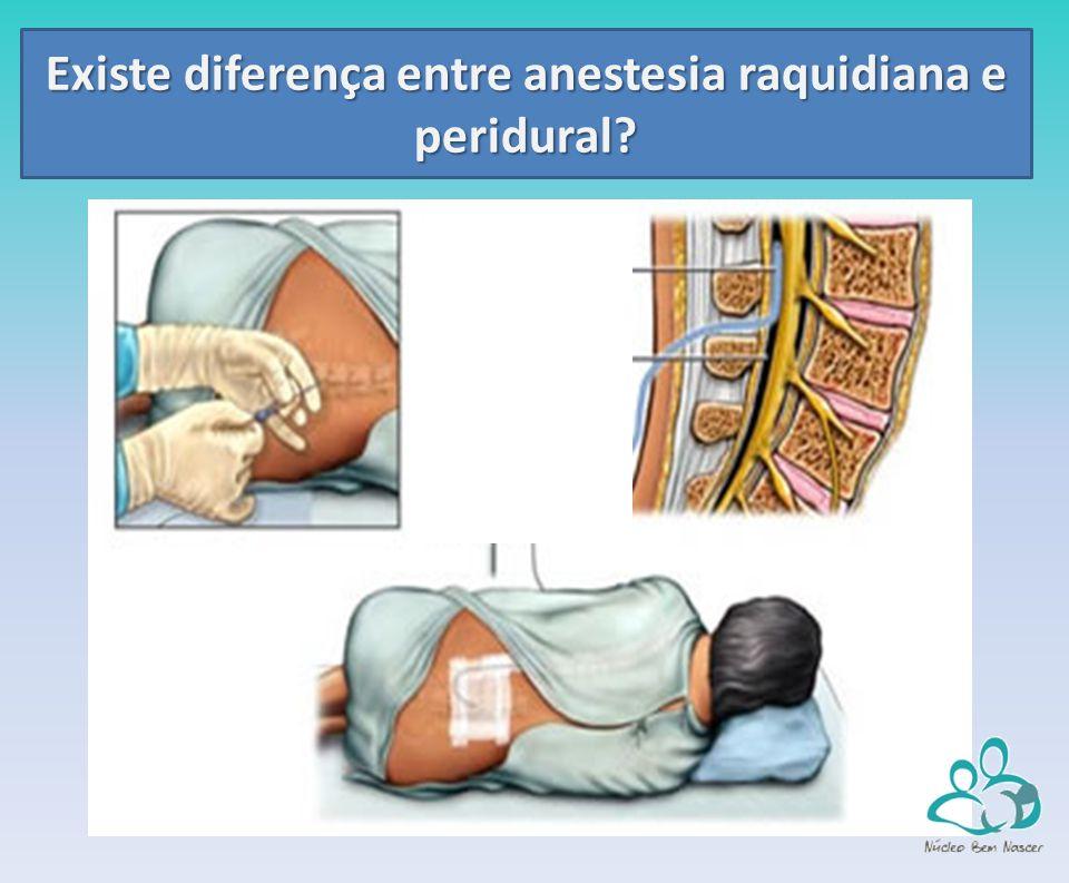 Existe diferença entre anestesia raquidiana e peridural