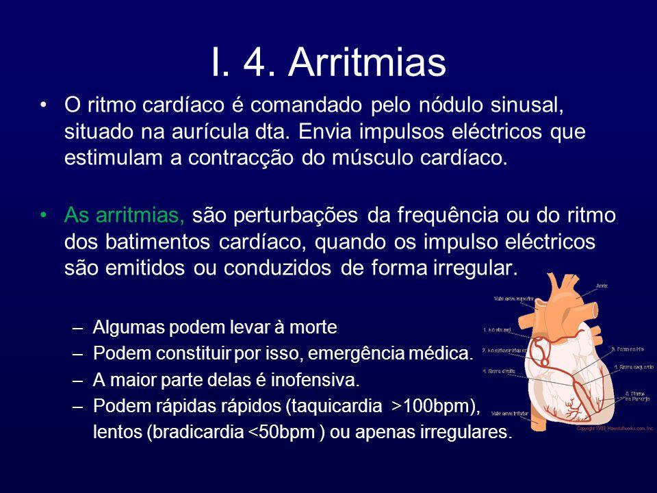 I. 4. Arritmias