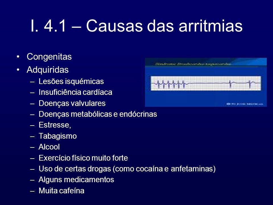 I. 4.1 – Causas das arritmias