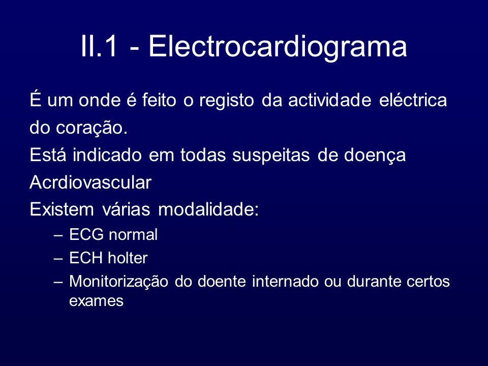 II.1 - Electrocardiograma