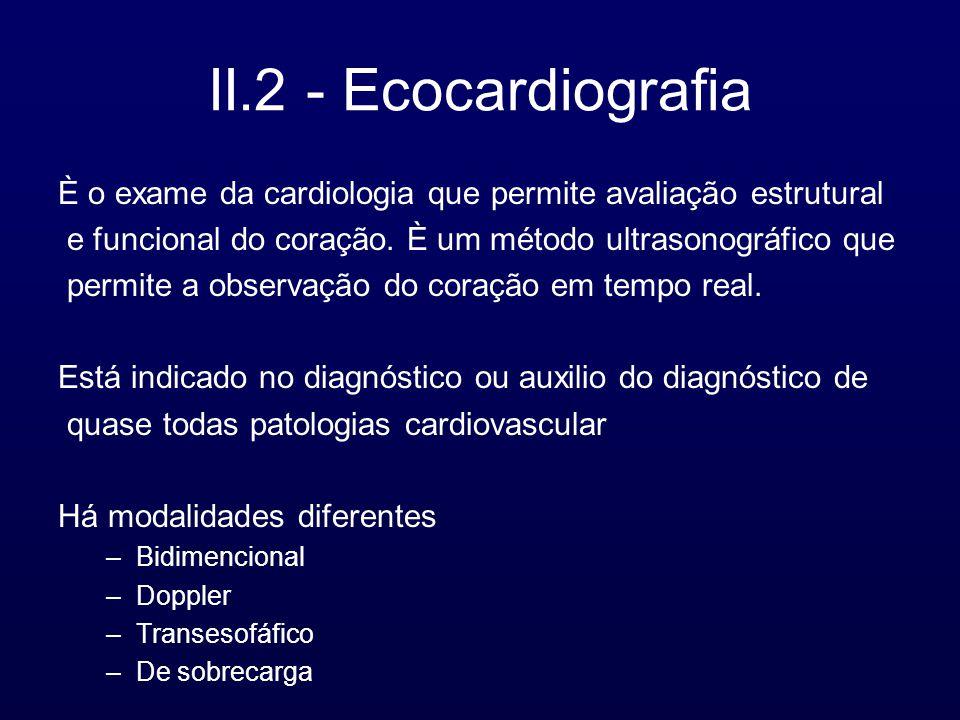 II.2 - Ecocardiografia È o exame da cardiologia que permite avaliação estrutural. e funcional do coração. È um método ultrasonográfico que.