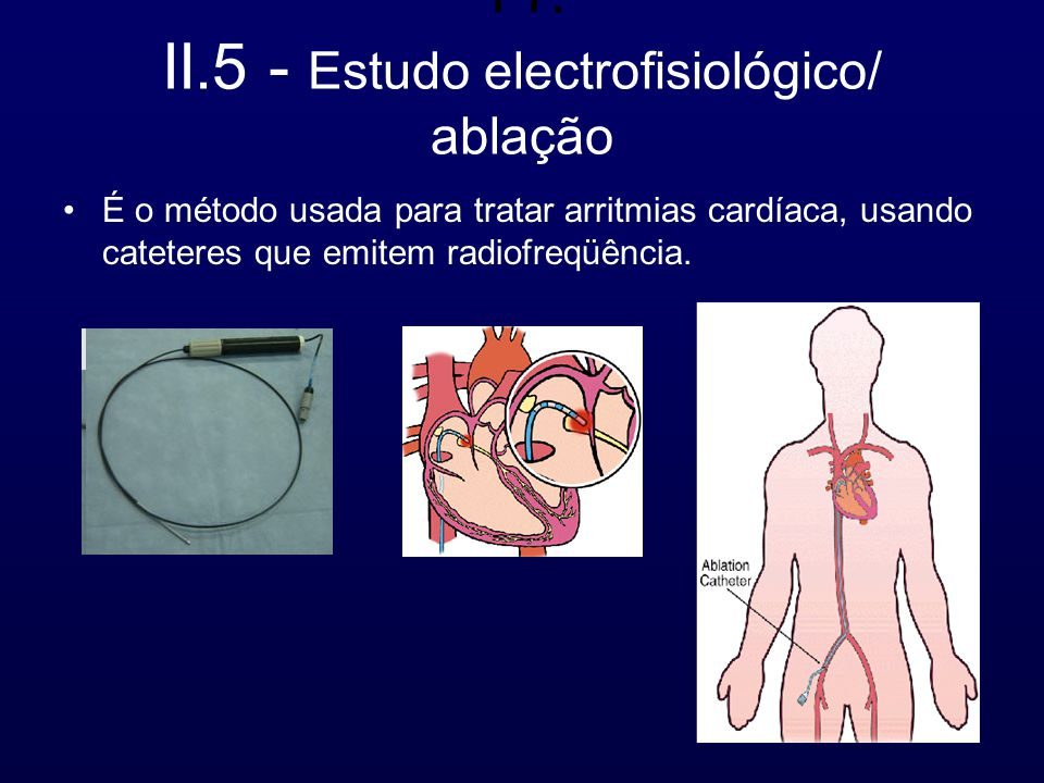 11. II.5 - Estudo electrofisiológico/ ablação