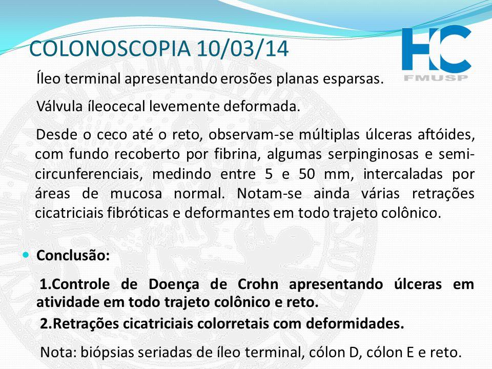 COLONOSCOPIA 10/03/14 Íleo terminal apresentando erosões planas esparsas. Válvula íleocecal levemente deformada.
