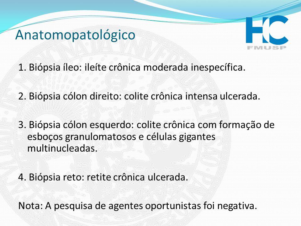 Anatomopatológico 1. Biópsia íleo: ileíte crônica moderada inespecífica. 2. Biópsia cólon direito: colite crônica intensa ulcerada.