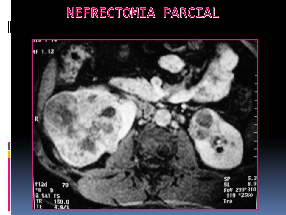NEFRECTOMIA PARCIAL
