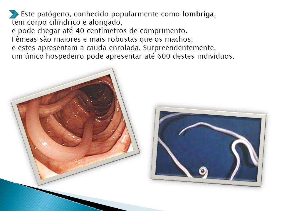 Este patógeno, conhecido popularmente como lombriga,