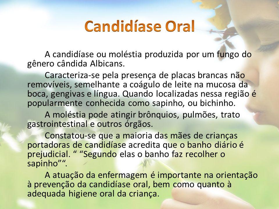 Candidíase Oral