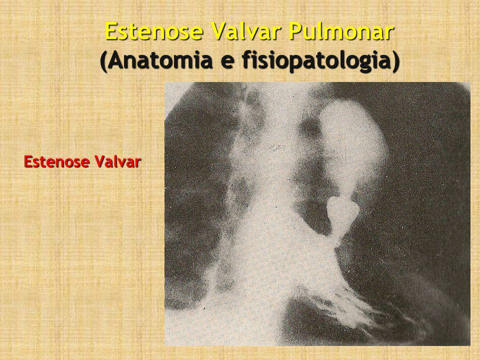 Estenose Valvar Pulmonar (Anatomia e fisiopatologia)
