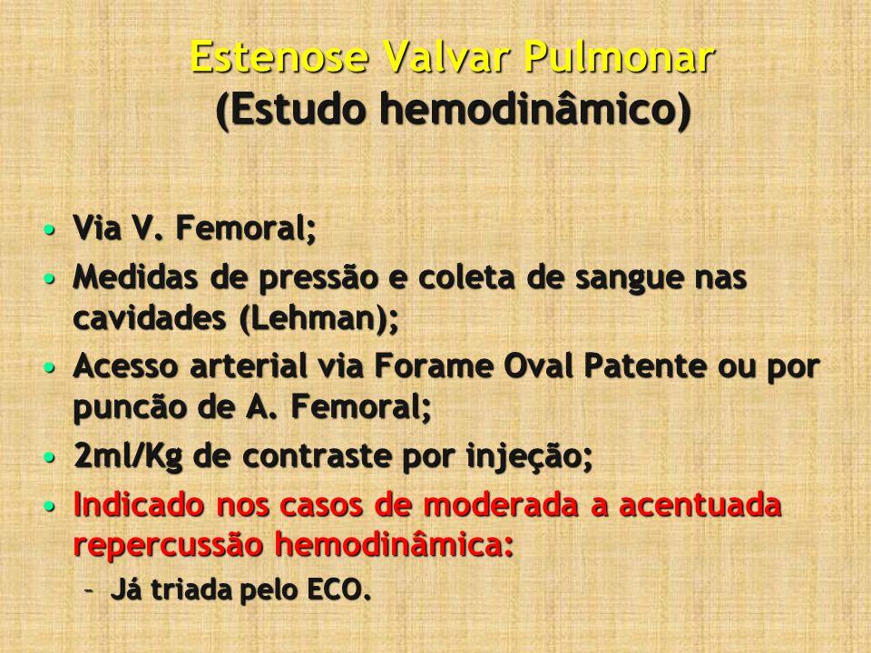 Estenose Valvar Pulmonar (Estudo hemodinâmico)