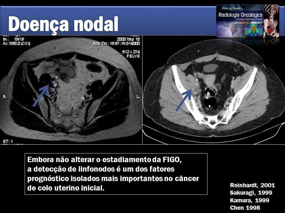 Doença nodal Embora não alterar o estadiamento da FIGO,