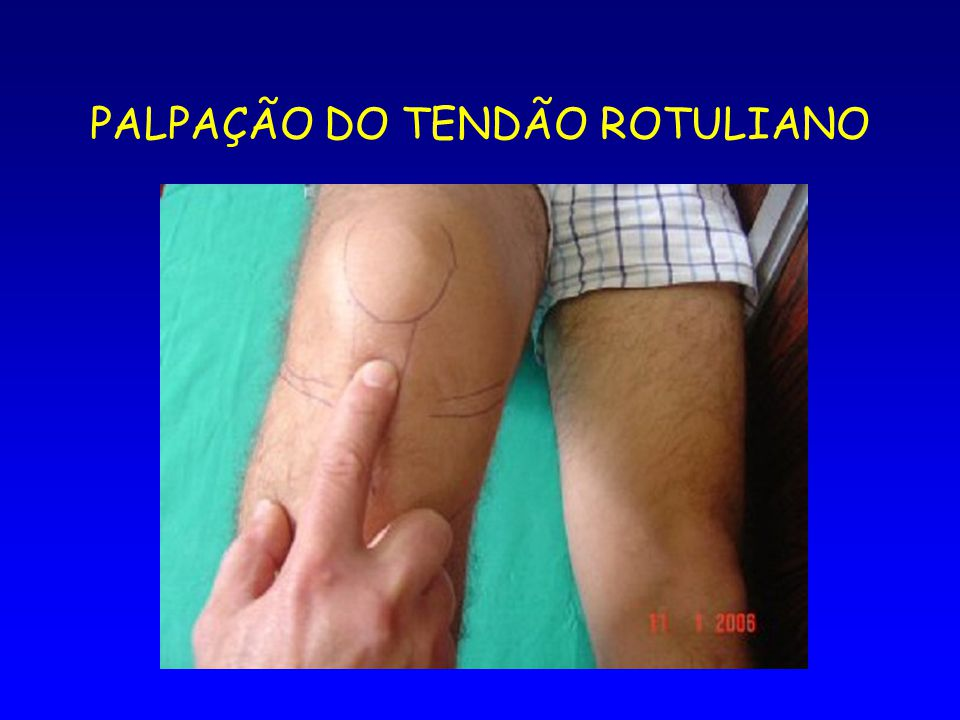 PALPAÇÃO DO TENDÃO ROTULIANO
