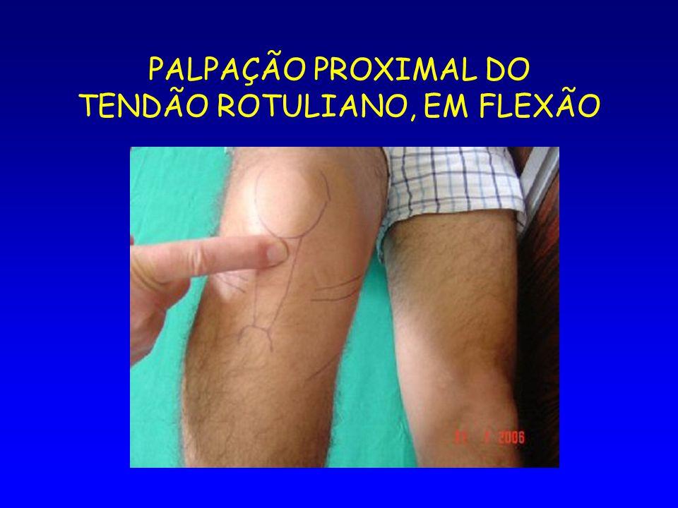 PALPAÇÃO PROXIMAL DO TENDÃO ROTULIANO, EM FLEXÃO