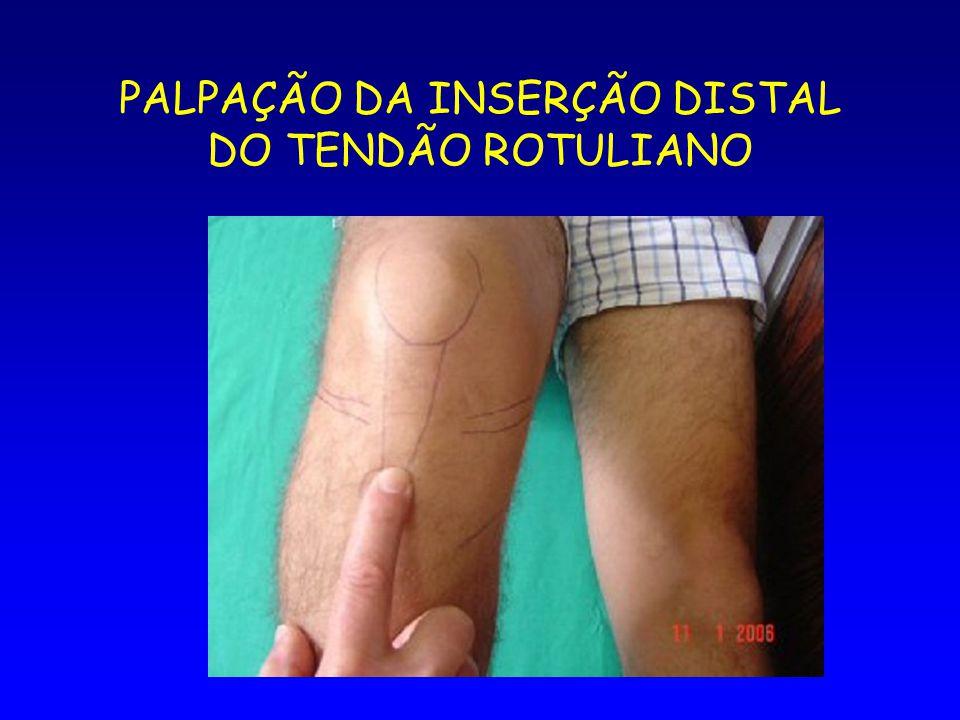PALPAÇÃO DA INSERÇÃO DISTAL DO TENDÃO ROTULIANO
