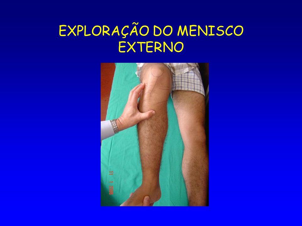 EXPLORAÇÃO DO MENISCO EXTERNO