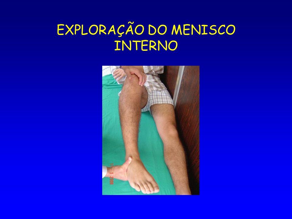 EXPLORAÇÃO DO MENISCO INTERNO