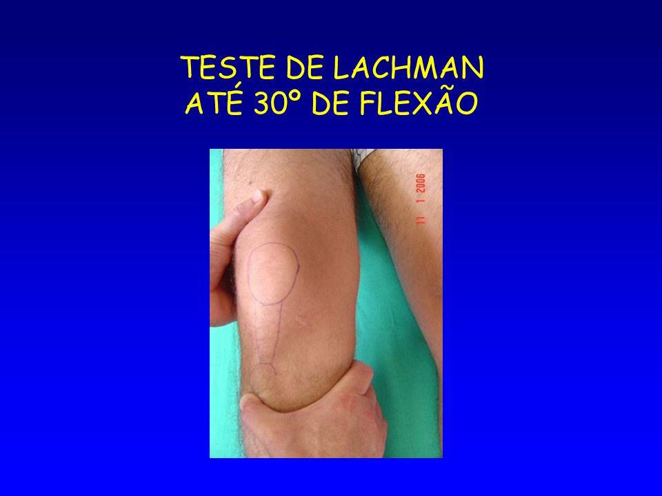 TESTE DE LACHMAN ATÉ 30º DE FLEXÃO