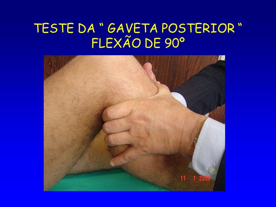 TESTE DA GAVETA POSTERIOR FLEXÃO DE 90º
